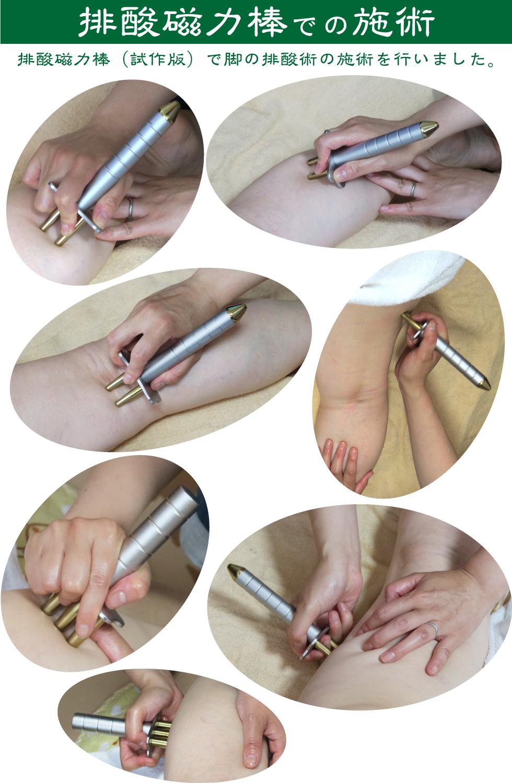 排酸磁力棒での施術