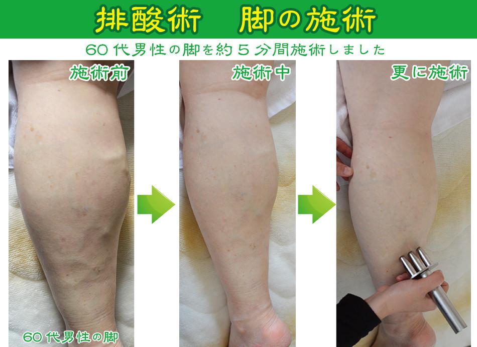 脚の排酸術
