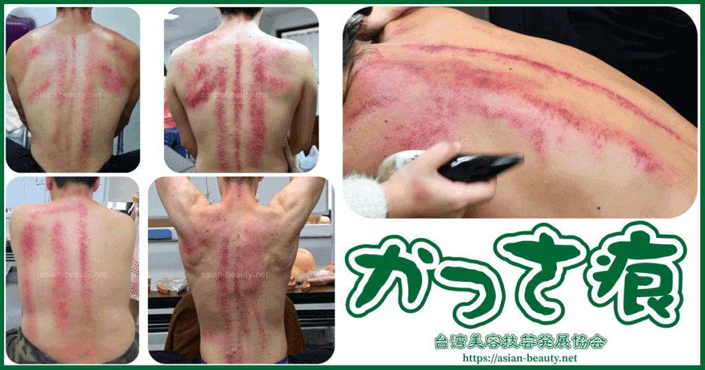 かっさをするとあざや内出血のようなかっさの痕が出る
