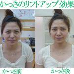 かっさ美容法の小顔・リフトアップ・痩身効果