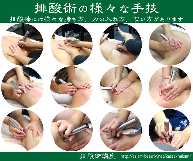 排酸術の手技